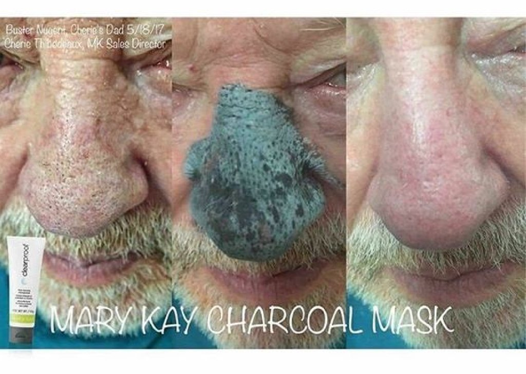 male nose skin clearnace